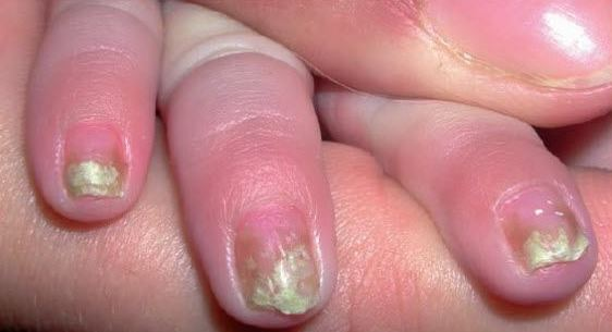 Nails Infection In Children